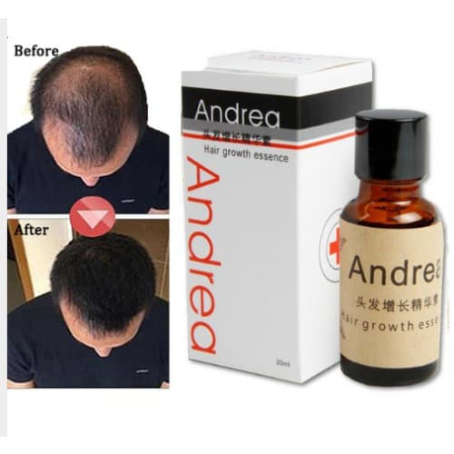 /H/a/Hair-Regrowth-Treatment-Serum-6501686_1.jpg