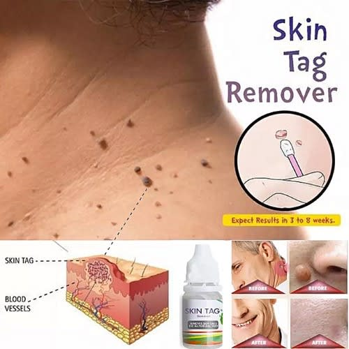 Skintag/wart Removal 10ml