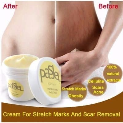 /P/a/Pasjel-Stretch-Marks-Scar-Removal-Cream-5163565_1.jpg