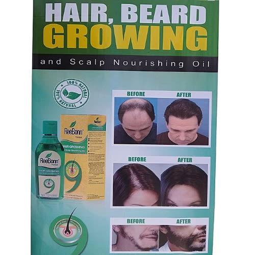 Reebonn Beard/hair Fast Growth Oil
