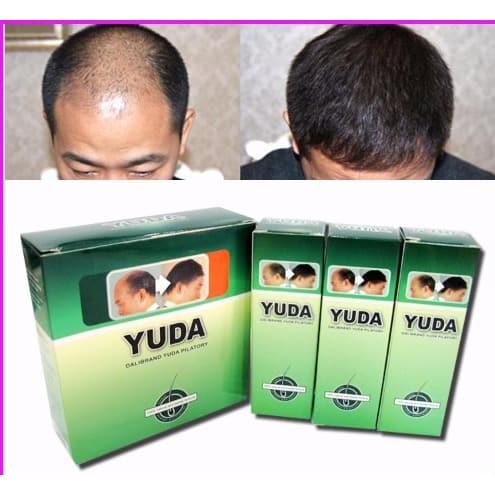 /Y/u/Yuda-Hairloss-and-Baldness-Remedy-Spray---3-Months-Treatment-7191155_4.jpg
